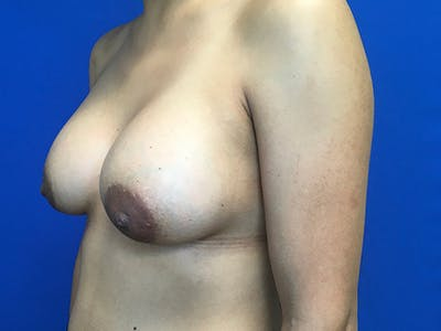 Breast Augmentation Gallery - Patient 62096004 - Image 4