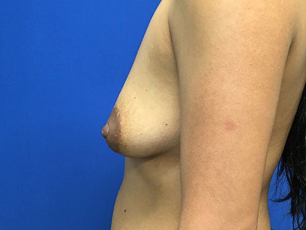 Breast Augmentation Gallery - Patient 62096004 - Image 5