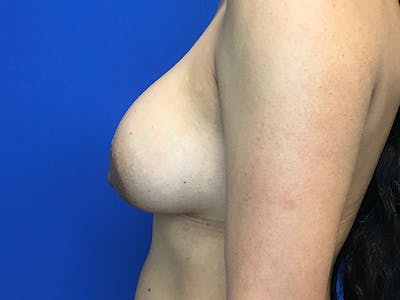 Breast Augmentation Gallery - Patient 62096004 - Image 6