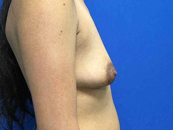 Breast Augmentation Gallery - Patient 62096004 - Image 7