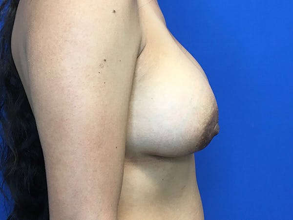 Breast Augmentation Gallery - Patient 62096004 - Image 8