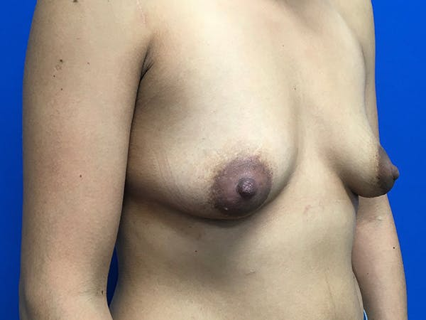 Breast Augmentation Gallery - Patient 62096004 - Image 9