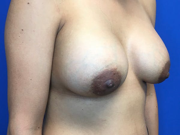 Breast Augmentation Gallery - Patient 62096004 - Image 10