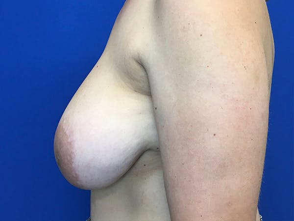 Mastopexy Gallery - Patient 62194399 - Image 5