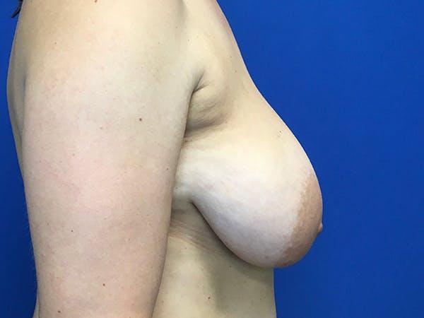 Mastopexy Gallery - Patient 62194399 - Image 7