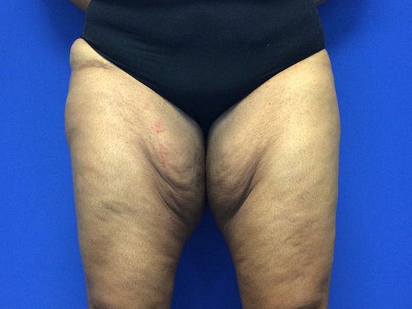 Thigh Lift Gallery - Patient 62194421 - Image 1