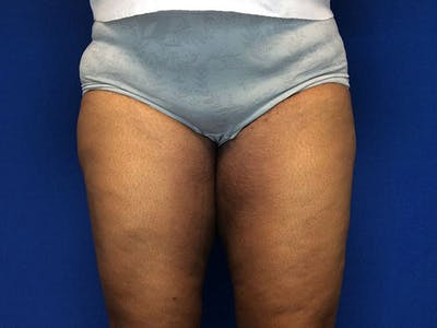 Thigh Lift Gallery - Patient 62194421 - Image 2