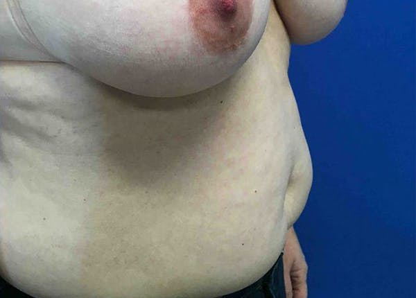 Liposuction Gallery - Patient 4910308 - Image 3