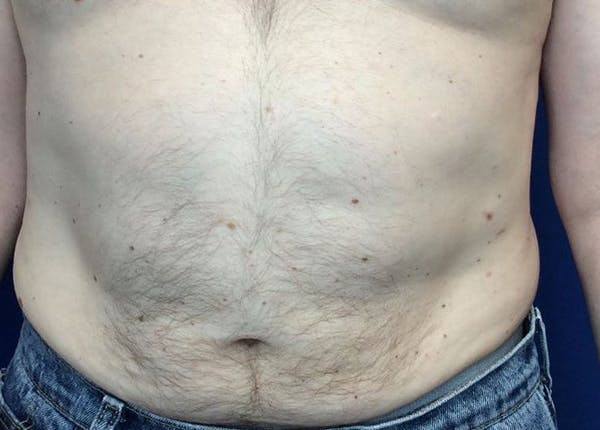 Liposuction Gallery - Patient 5555905 - Image 2