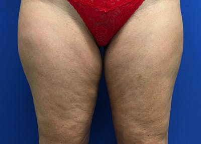 Liposuction Gallery - Patient 5910742 - Image 1
