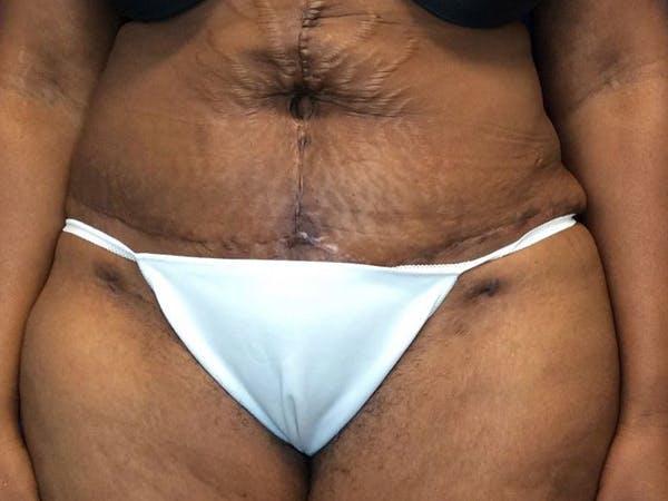 Tummy Tuck (Abdominoplasty) Gallery - Patient 65237471 - Image 2