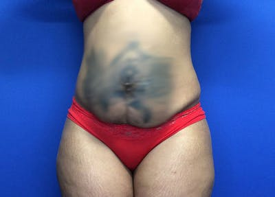 Liposuction Gallery - Patient 65565133 - Image 1