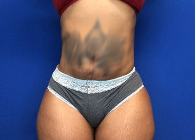 Liposuction Gallery - Patient 65565133 - Image 2