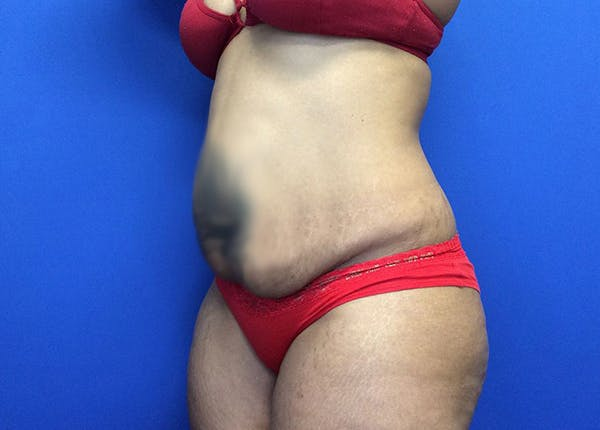 Liposuction Gallery - Patient 65565133 - Image 3