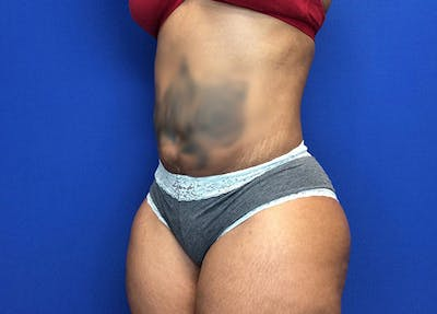 Liposuction Gallery - Patient 65565133 - Image 4
