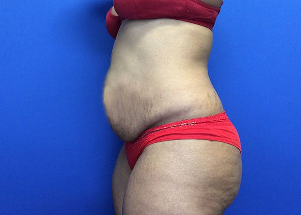 Liposuction Gallery - Patient 65565133 - Image 5