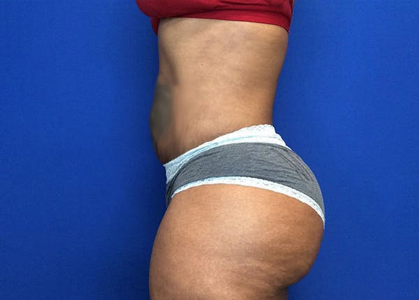 Liposuction Gallery - Patient 65565133 - Image 6