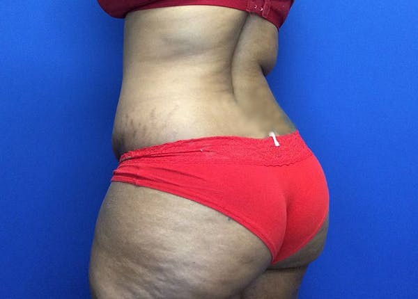 Liposuction Gallery - Patient 65565133 - Image 7