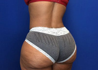 Liposuction Gallery - Patient 65565133 - Image 8