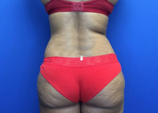 Liposuction Gallery - Patient 65565133 - Image 9