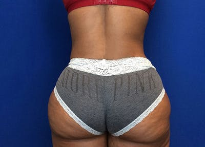 Liposuction Gallery - Patient 65565133 - Image 10
