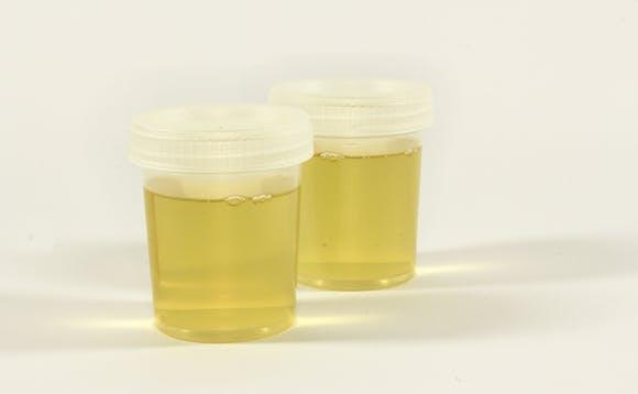 Urinprøve - blod i urinen
