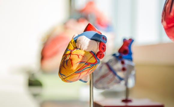 Årsaker til hjerteflimmer