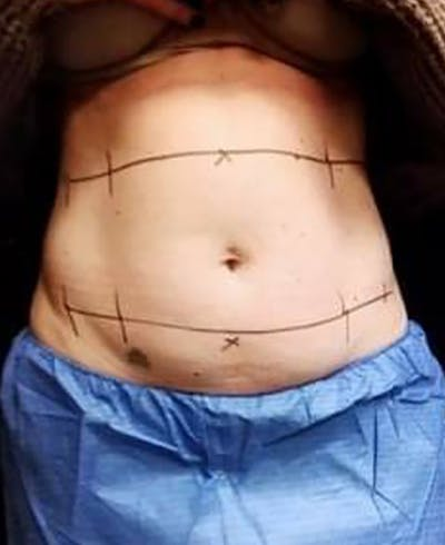 CoolSculpting Gallery - Patient 5646902 - Image 1