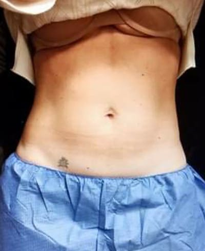 CoolSculpting Gallery - Patient 5646902 - Image 2