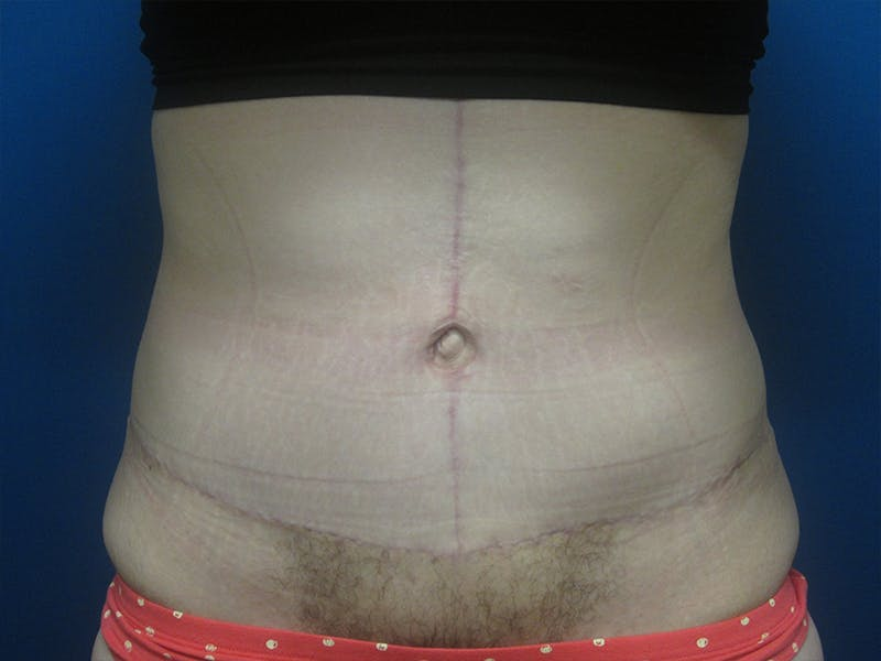 Surgery after Massive Weight Loss Gallery - Patient 5646936 - Image 2
