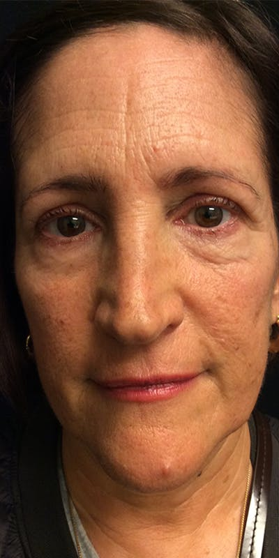 Ultherapy Gallery - Patient 5646944 - Image 1
