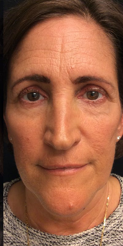 Ultherapy Gallery - Patient 5646944 - Image 2