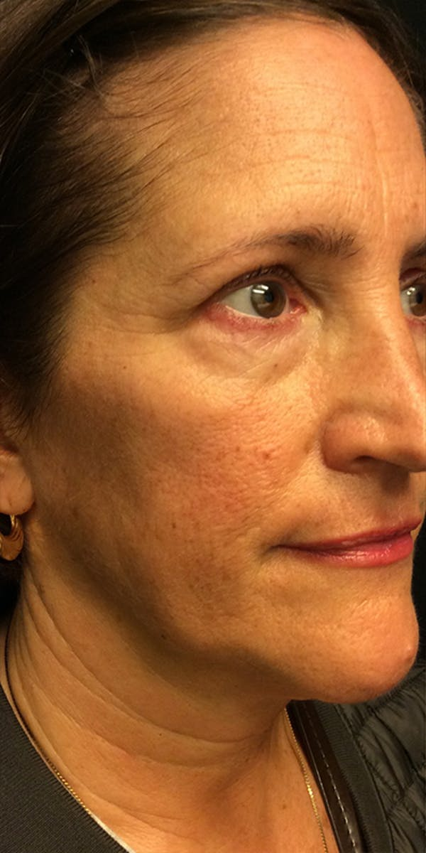 Ultherapy Gallery - Patient 5646944 - Image 3