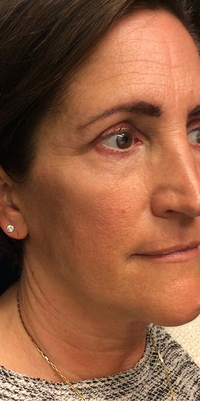 Ultherapy Gallery - Patient 5646944 - Image 4