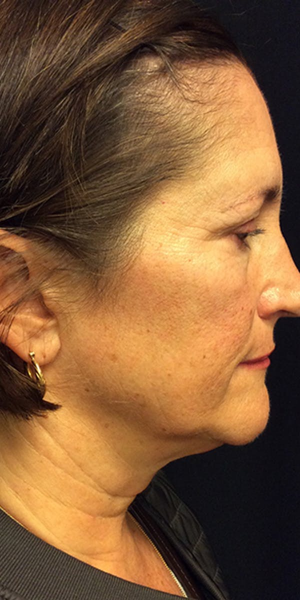 Ultherapy Gallery - Patient 5646944 - Image 5
