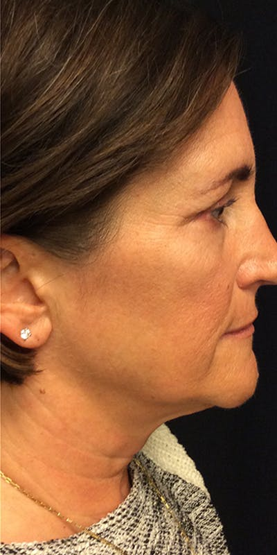 Ultherapy Gallery - Patient 5646944 - Image 6