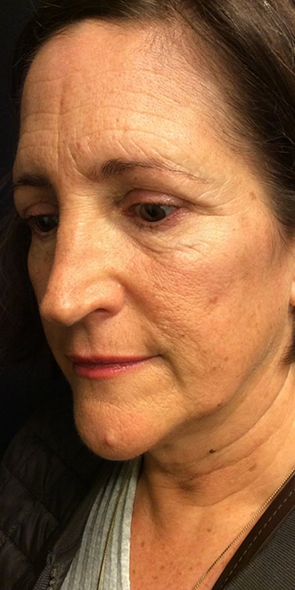 Ultherapy Gallery - Patient 5646944 - Image 7