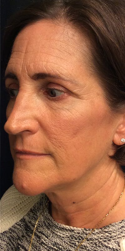 Ultherapy Gallery - Patient 5646944 - Image 8
