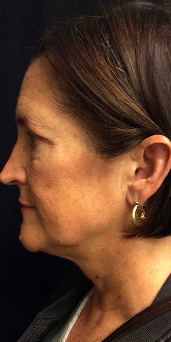 Ultherapy Gallery - Patient 5646944 - Image 9