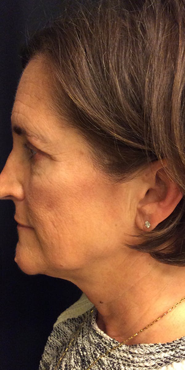 Ultherapy Gallery - Patient 5646944 - Image 10