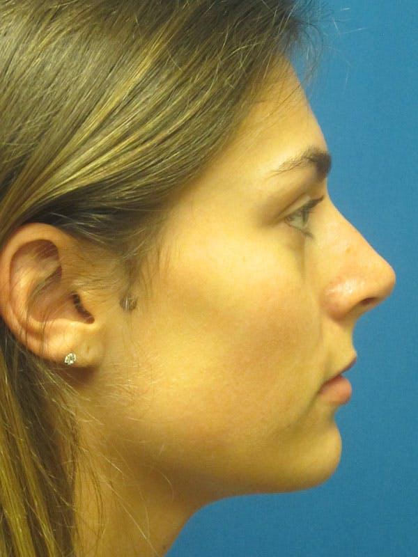 Rhinoplasty/Septoplasty Gallery - Patient 5804845 - Image 5
