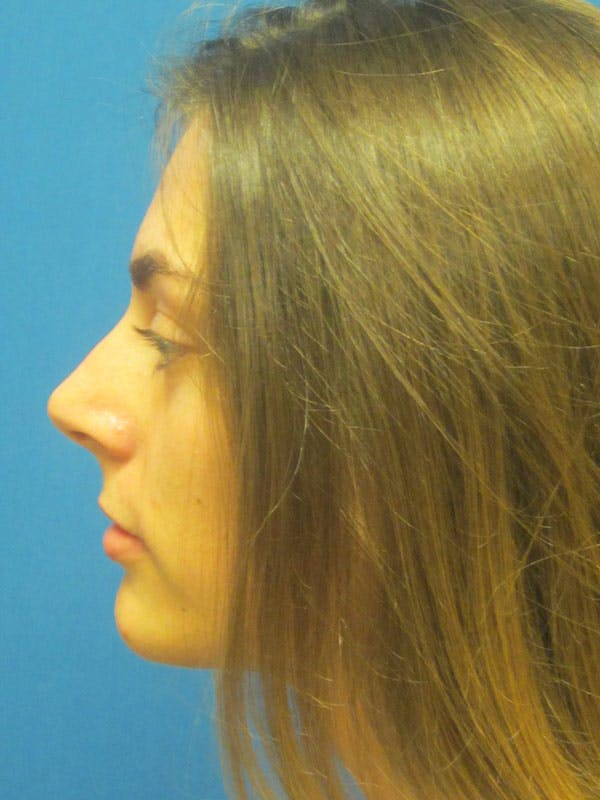 Rhinoplasty/Septoplasty Gallery - Patient 5804845 - Image 7