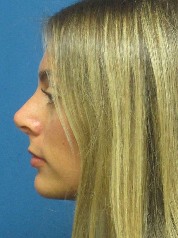 Rhinoplasty/Septoplasty Gallery - Patient 5804845 - Image 8