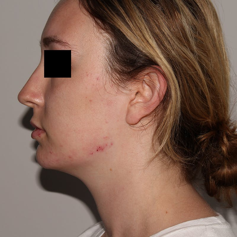 Jawline Contouring  Gallery - Patient 10910376 - Image 2