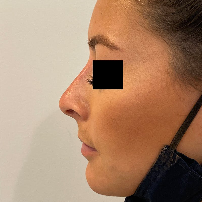 Non-Surgical Rhinoplasty Gallery - Patient 10910384 - Image 2