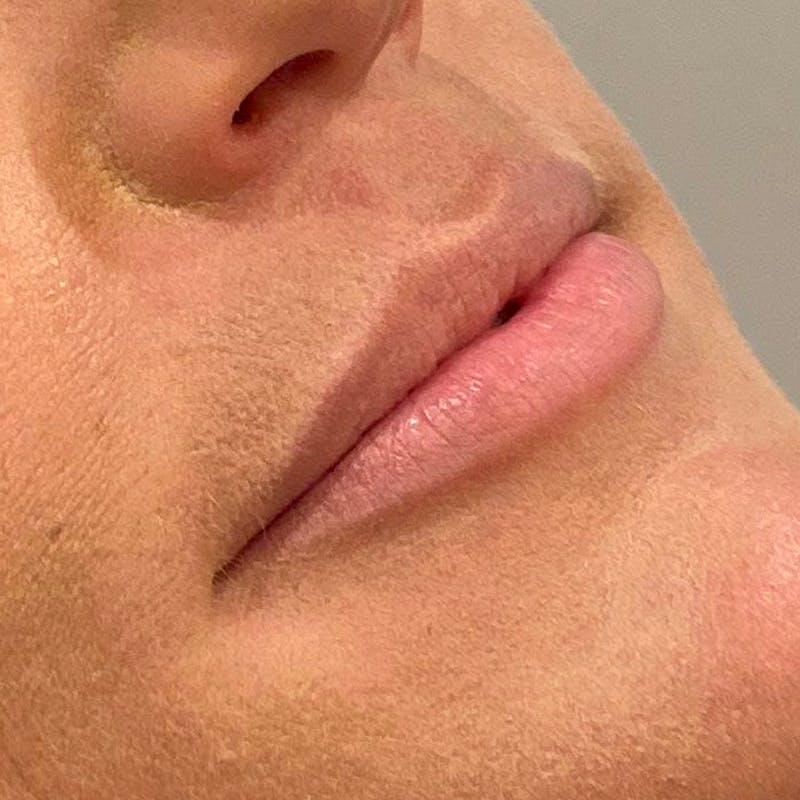 Lip Augmentation Gallery - Patient 10910408 - Image 3