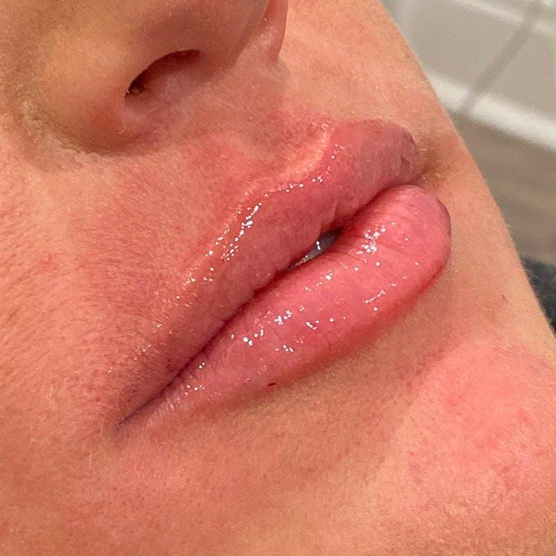 Lip Augmentation Gallery - Patient 10910408 - Image 4