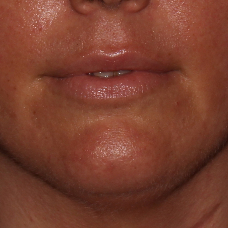 Lip Augmentation Gallery - Patient 10910409 - Image 2
