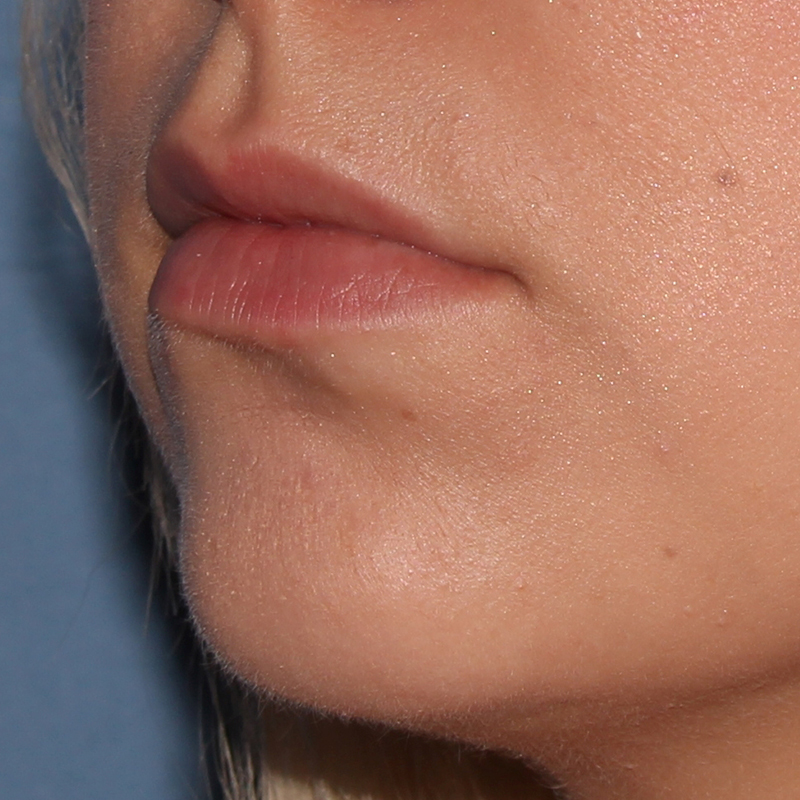 Lip Augmentation Gallery - Patient 10910410 - Image 3