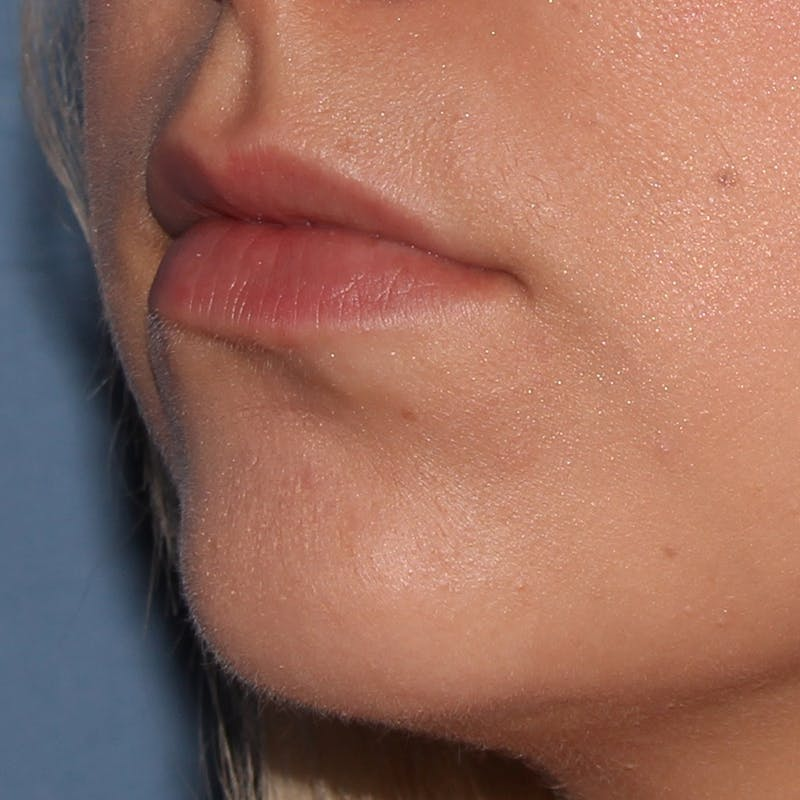 Lip Augmentation Gallery - Patient 10910410 - Image 1